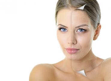 Дехидратирането на кожата