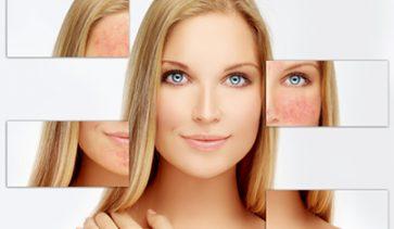Грижи за чувствителна кожа